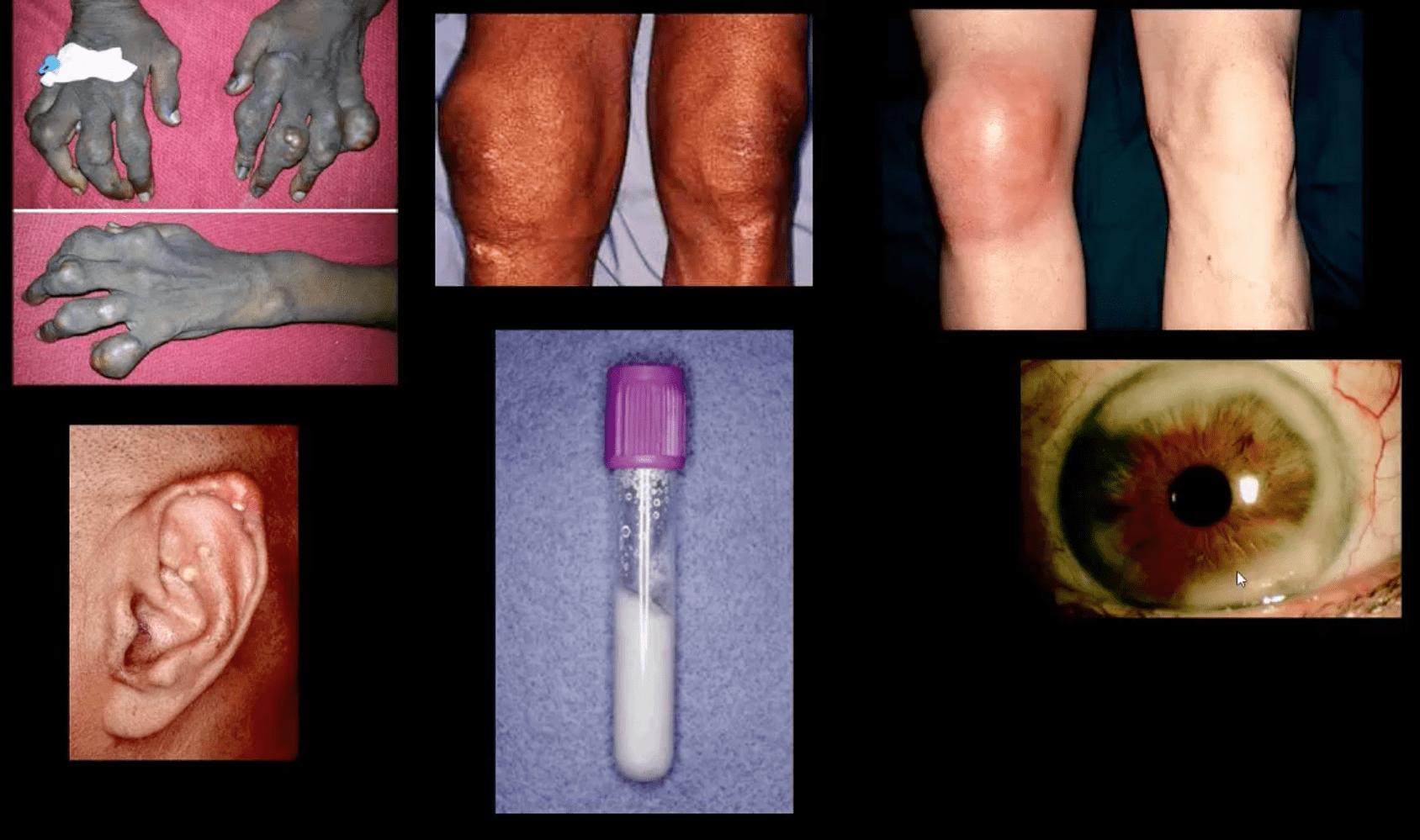 joelho artrite quiropraxia el paso tx.