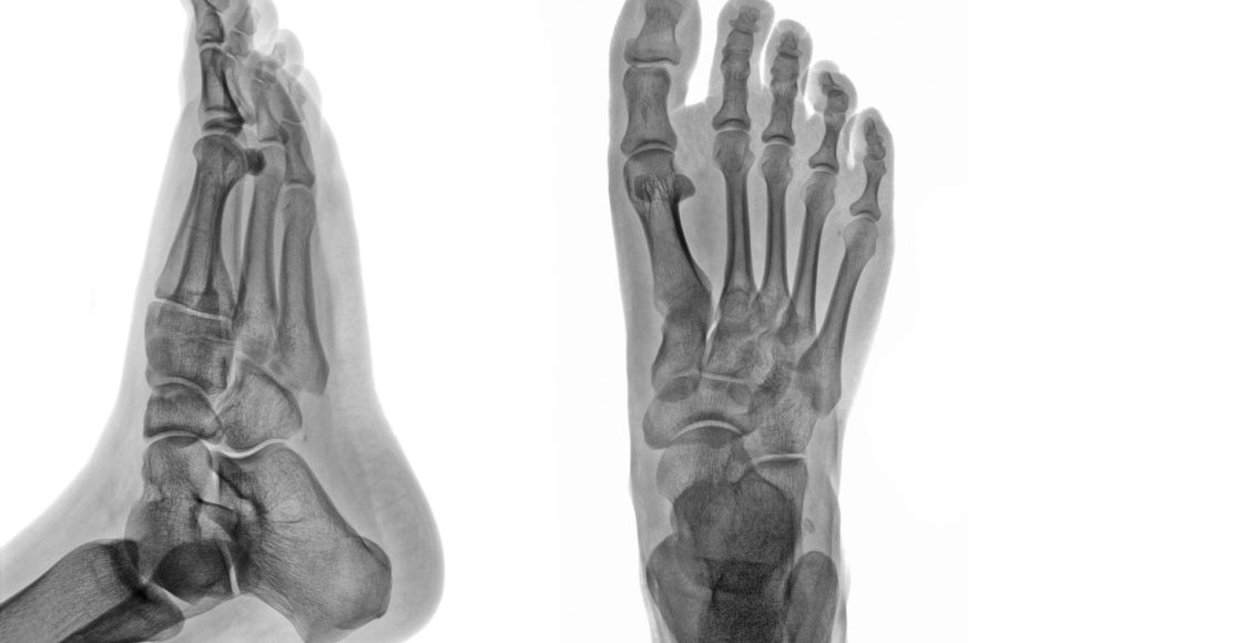 артрит стопы и травмы el paso tx.