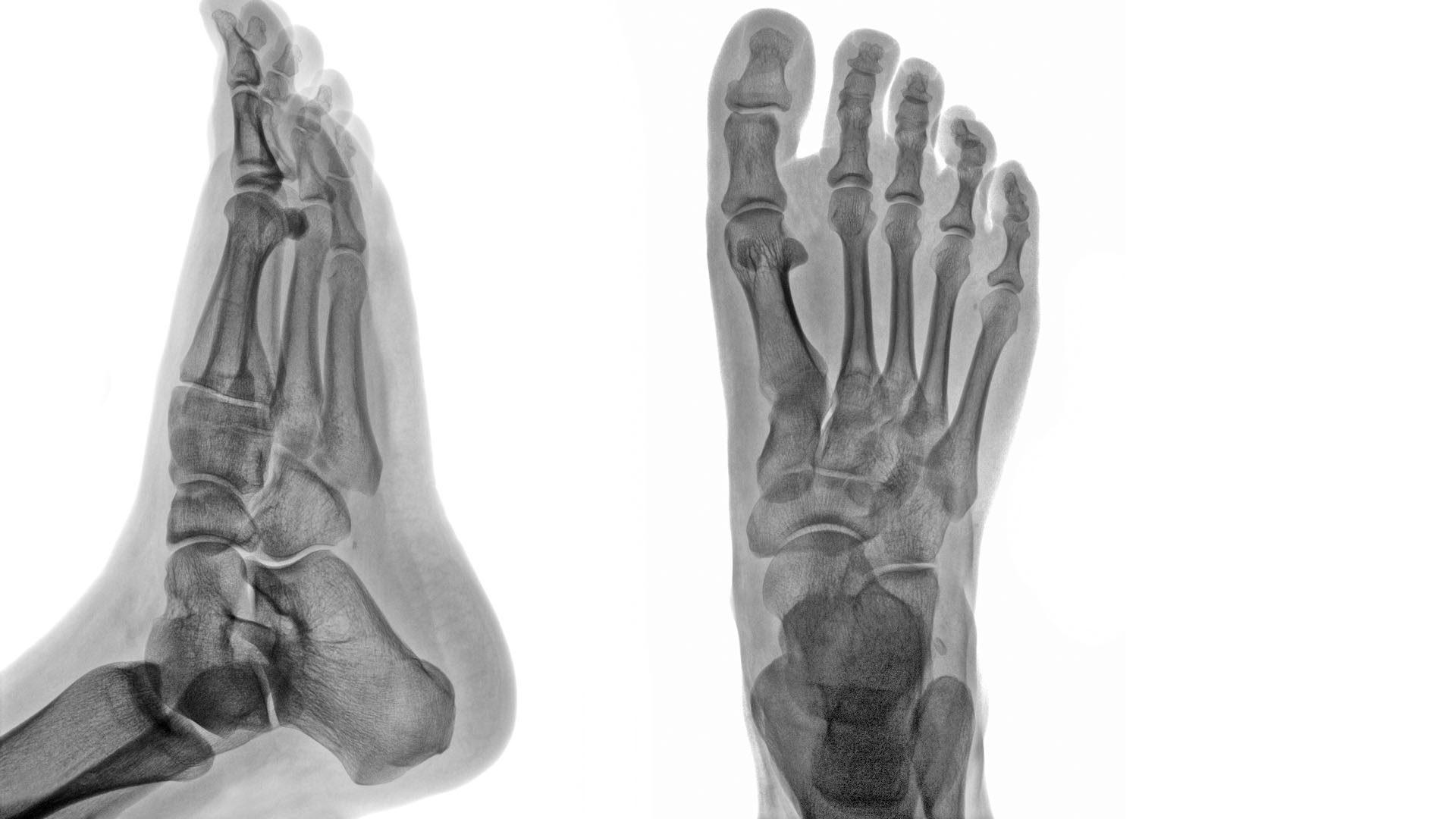 足首足関節炎と外傷エルパソtx。