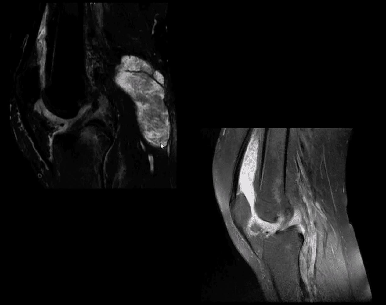 膝関節炎カイロプラクティックケアエルパソtx。