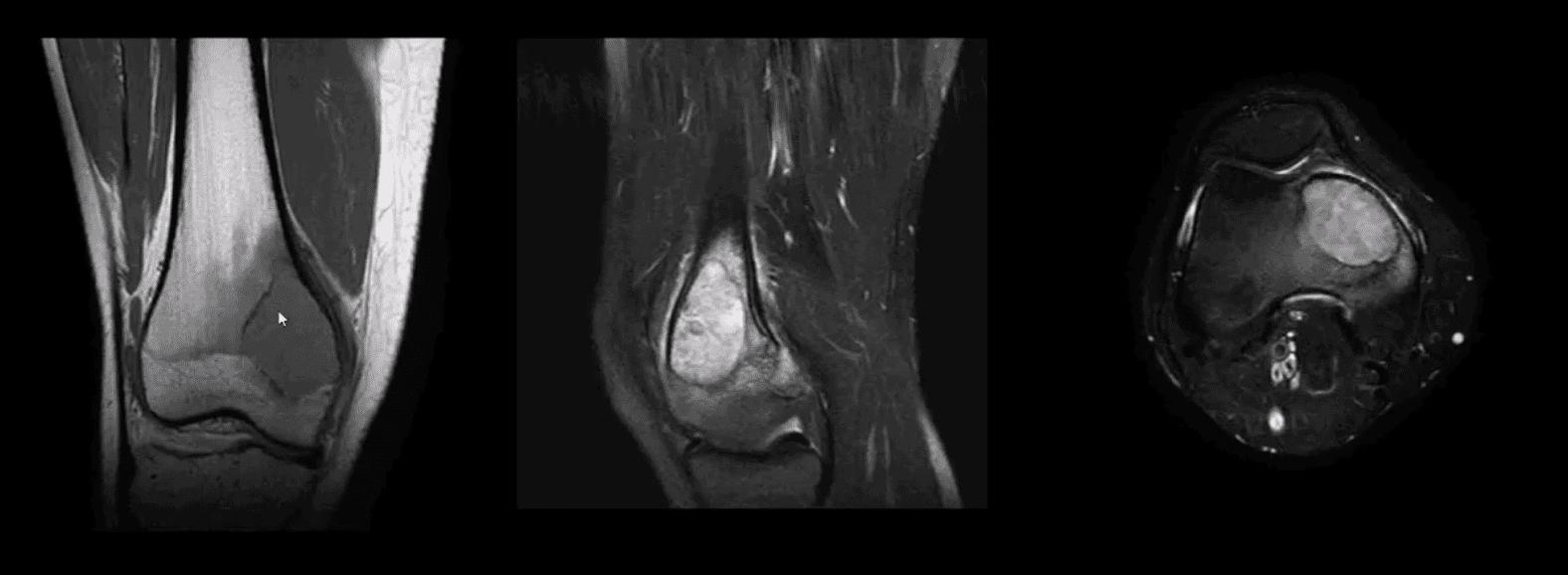dor no joelho tratamento quiroprático el paso tx.