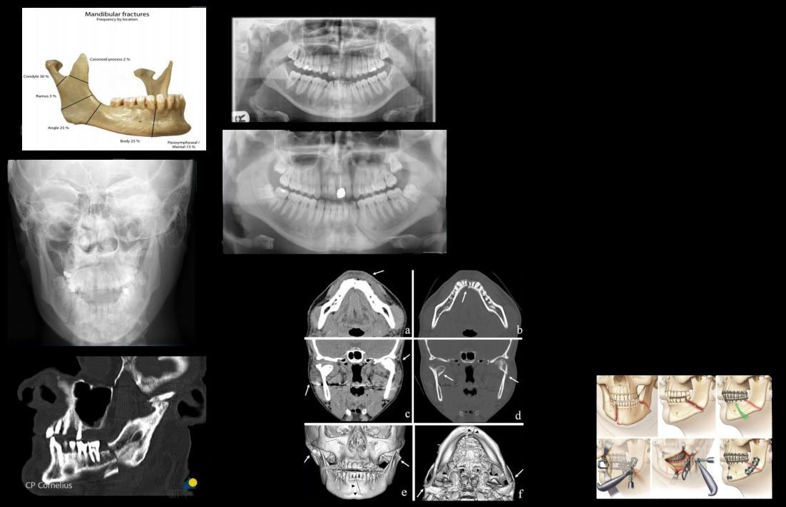 hovedtrauma imaging el paso tx.