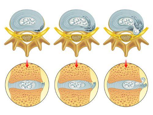 un disco chiropratico erniato aiuto el paso tx.