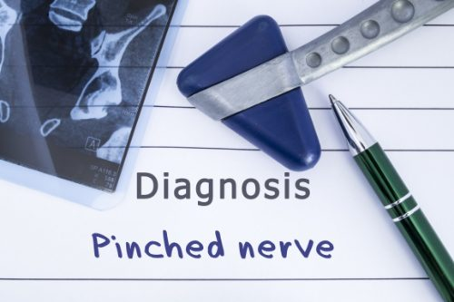 a pinched nerve and chiropractic care el paso tx.
