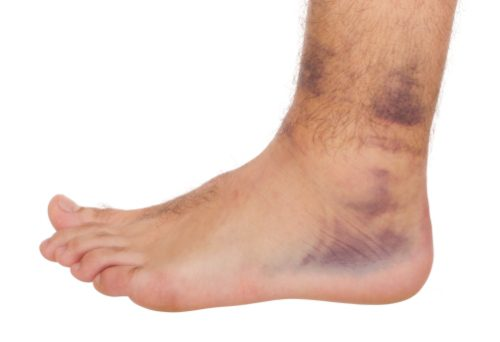 sprain and strain treatment - injury medical and chiropractic rehabilitation el paso, tx.