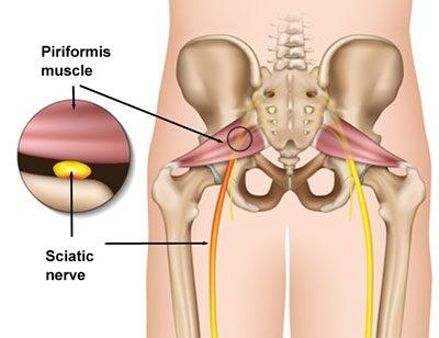 Piriformis Syndrome Diagram 2 | El Paso, TX Chiropractor