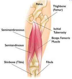 Proximal Hamstring Injury Diagram 3 | El Paso, TX Chiropractor