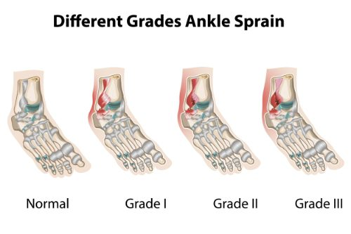 11860 Vista Del Sol, Ste. 128 The 3 Degrees of An Ankle Sprain & How Chiropractic Can Help