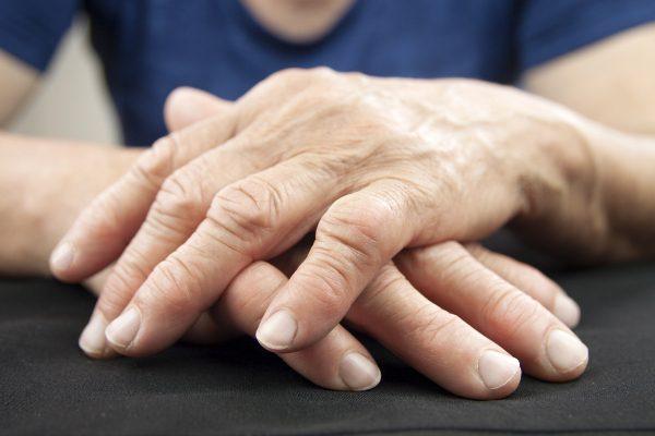 11860 Vista Del Sol Dr #128, Что нужно знать о ревматоидном артрите (РА) Эль-Пасо, Техас