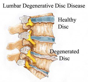 degenerative disc disease diagram | El Paso, TX Chiropractor