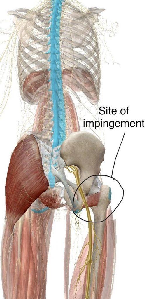 ischiofemoral impingement diagram 2 | El Paso, TX Chiropractor