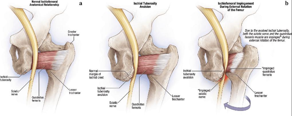 ischiofemoral impingement diagram 1 | El Paso, TX Chiropractor