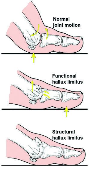 functional and structural diagram | El Paso, TX Chiropractor