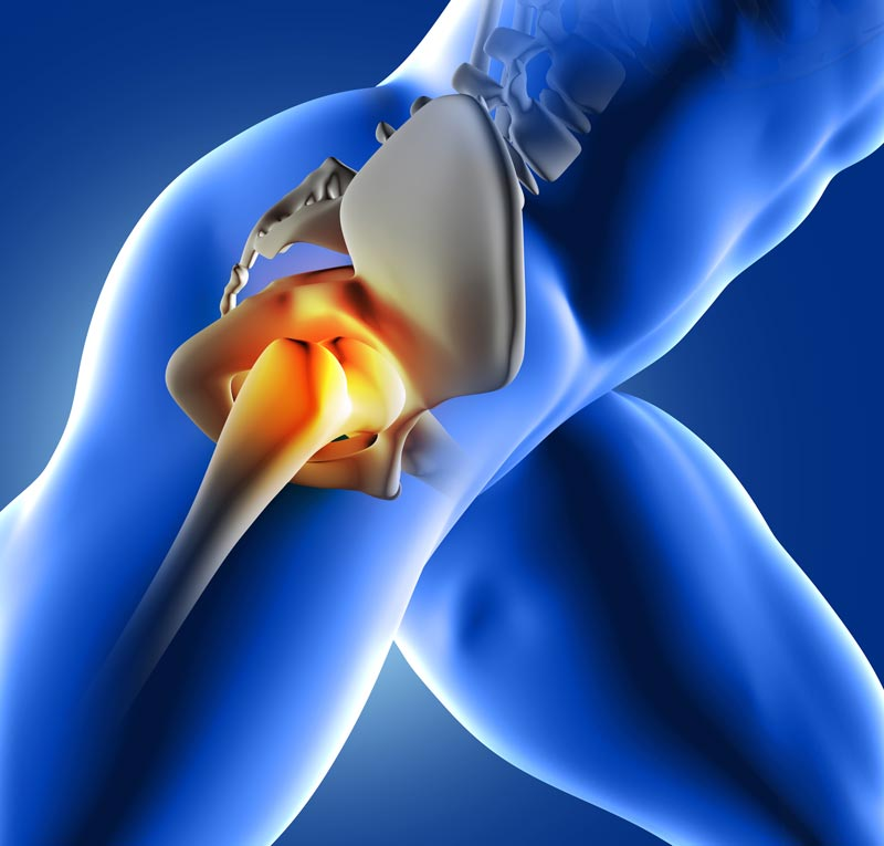 11860 Vista Del Sol, Ste. 128 How Custom Orthotics Alleviate Hip Pain El Paso, Texas