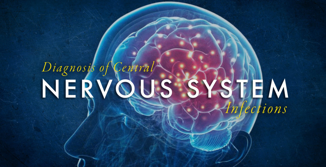 Imagen que demuestra el cerebro humano para el diagnóstico de infecciones del sistema nervioso central.