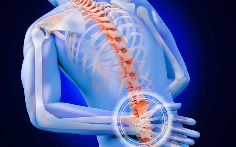 Ankylosing Spondylitis Causes and Symptoms