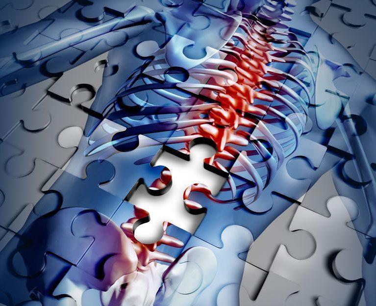 11860 Vista Del Sol Ste. 128 Osteoporosis and Increasing Bone Fractures El Paso, TX.