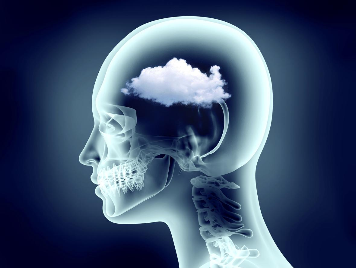 Functional Neurology: Understanding Brain Fog and Head Pain | El Paso, TX Chiropractor