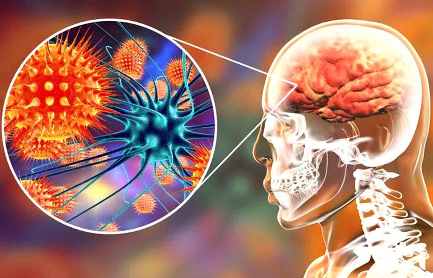 Функциональная неврология: понимание аутоиммунного заболевания мозга Сообщение в блоге | Эль Пасо, Техас Хиропрактик