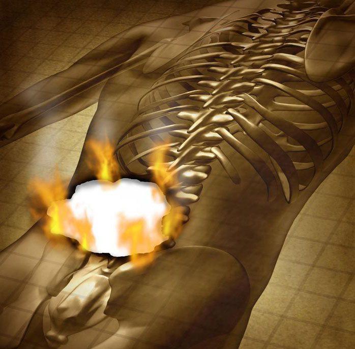 11860 Vista Del Sol, Ste. 128 Sciatica e nervi correlati dolore alla schiena e alle gambe El Paso, TX.