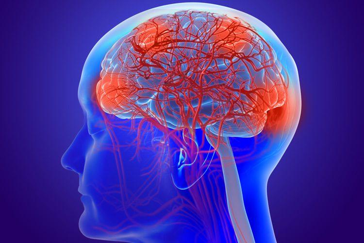 Funkcinė neurologija: kas yra nesandarios smegenys? | El Paso, TX Chiropractor