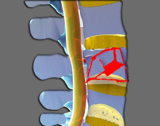 11860 Vista Del Sol, Ste. 128 Burst Fracture Injury, Diagnosis and Treatment El Paso, TX.
