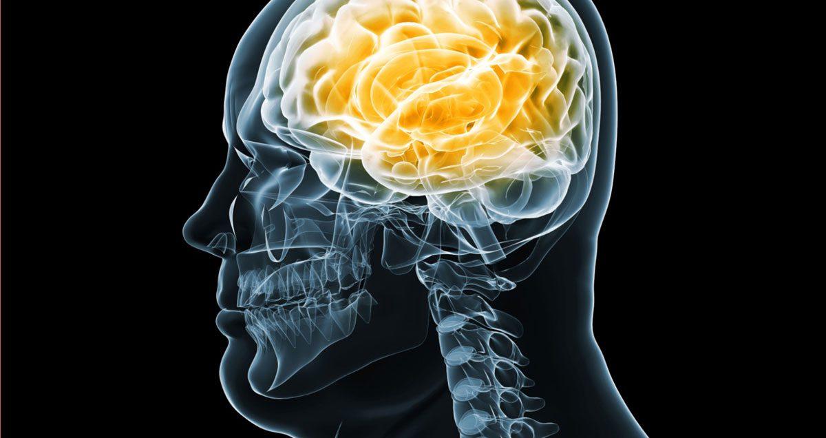Neurologia funzionale: salute del cervello e obesità | Chiropratico El Paso, TX