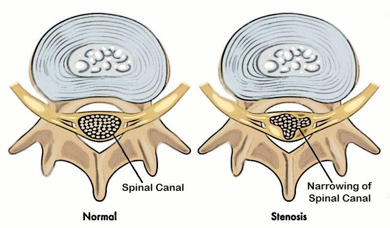 11860 Vista del Sol, Ste. 128 Síntomas de estenosis espinal Diagnóstico y tratamiento tempranos