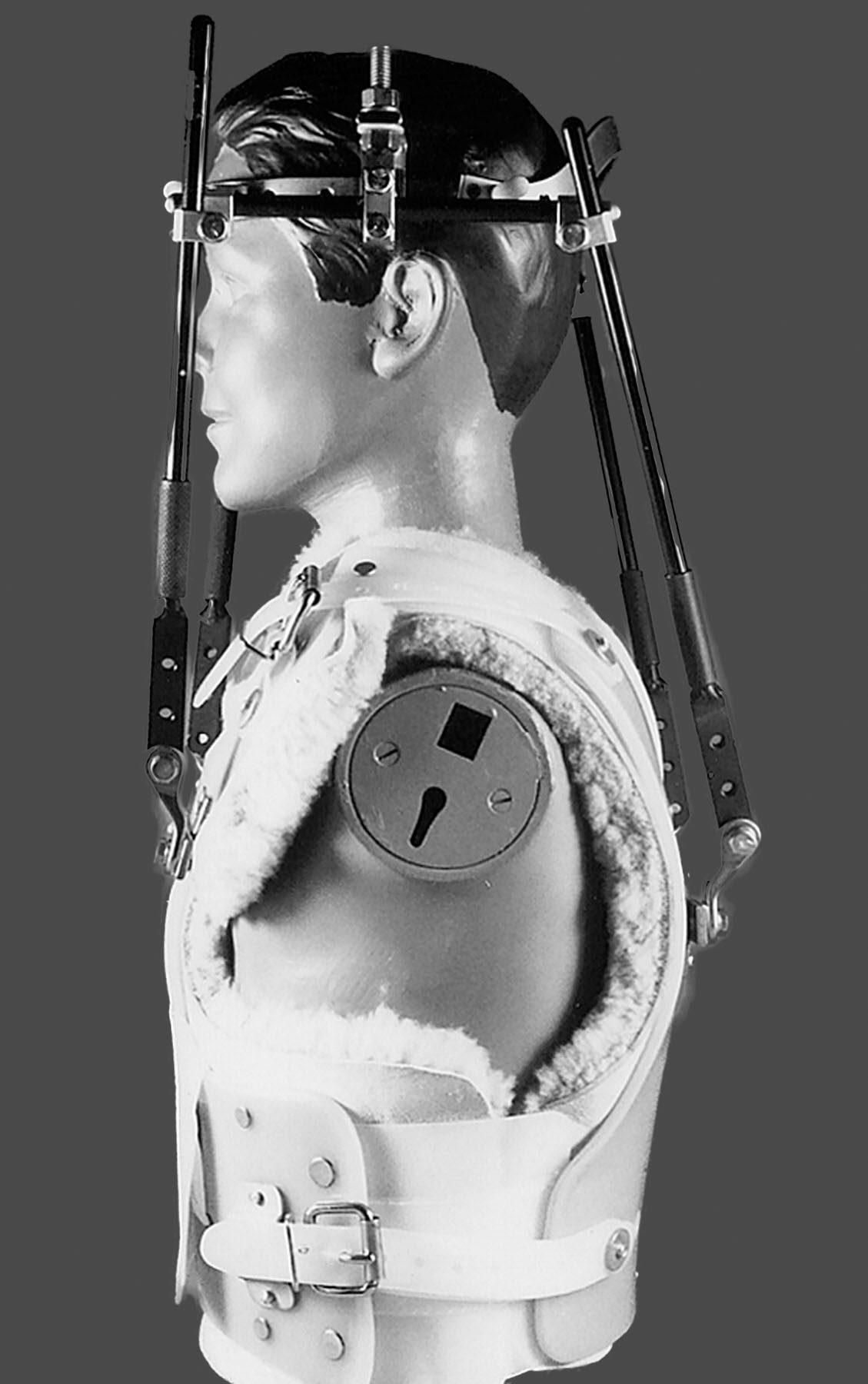 11860 Vista Del Sol, Ste. 128 apparecchi per il collo, collari cervicali: tipi di rinforzo spinale