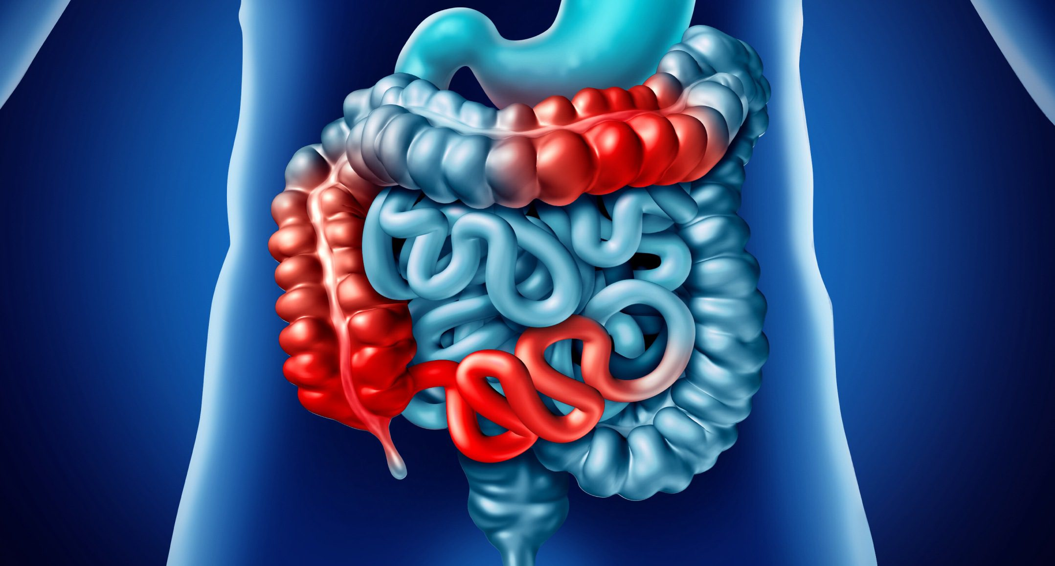 What is Crohn's Disease? An Overview | El Paso, TX Chiropractor