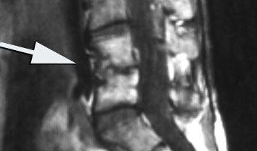 11860 Vista Del Sol, Ste. 128 Discite Infezione del disco spinale che causa infiammazione