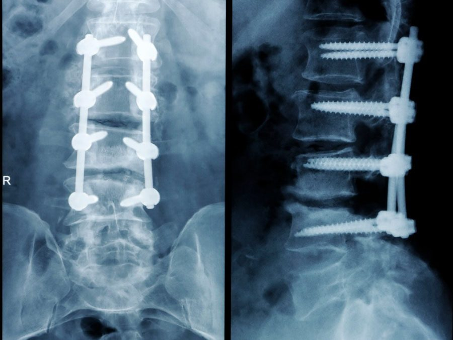 11860 Vista Del Sol, Ste. 128 Spinal Hardware Removal When Broken or Infected