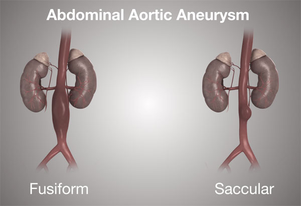 11860 Vista Del Sol, Ste. 128 Treatment For An Abdominal Aortic Aneurysm