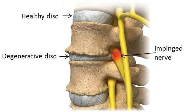 11860 Vista Del Sol, Ste. 128 Disko skausmas ir nervų šaknų skausmas Suprantant stuburo disko problemas