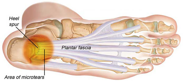 11860 Vista Del Sol, Ste. 128 Inflamed Plantar Fascia, Heel/Foot Pain, and Chiropractic