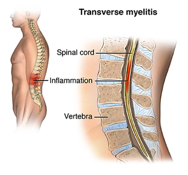 11860 Vista Del Sol, Ste. 128 Transverse Myelitis Spinal Cord Disorder Possible Cause Covid-19