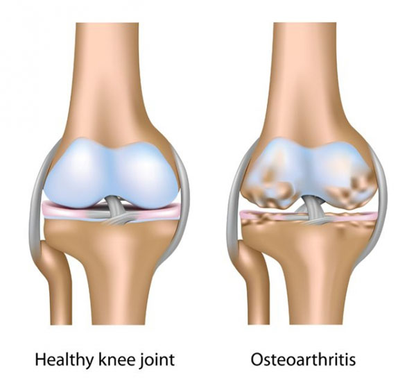 11860 Vista Del Sol, Ste. 128 Chiropractic Physical Therapy For Knee Pain