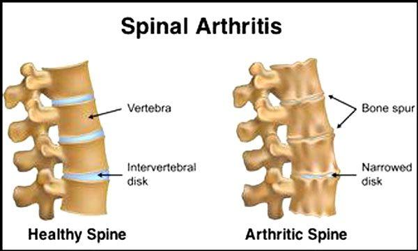 11860 Vista Del Sol, Ste. 128 Envejecimiento y algunas formas de mantener la columna vertebral en plena forma